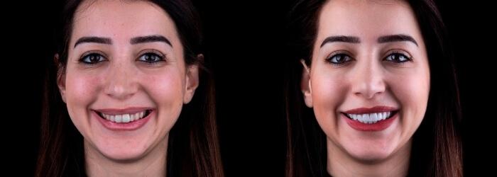 Diseño de sonrisa: qué es, beneficios y precio