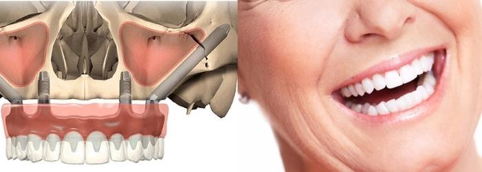 ¿Qué son los implantes cigomáticos y quién puede usarlos?