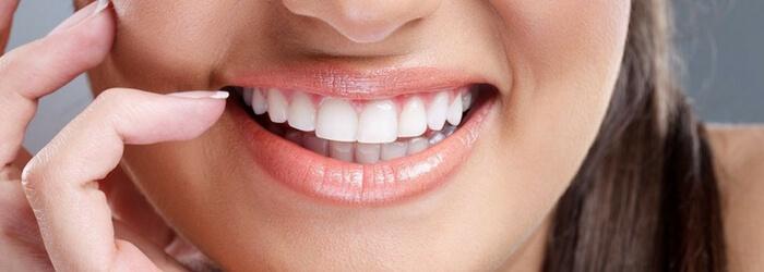 Cuidados después de un diseño de sonrisa